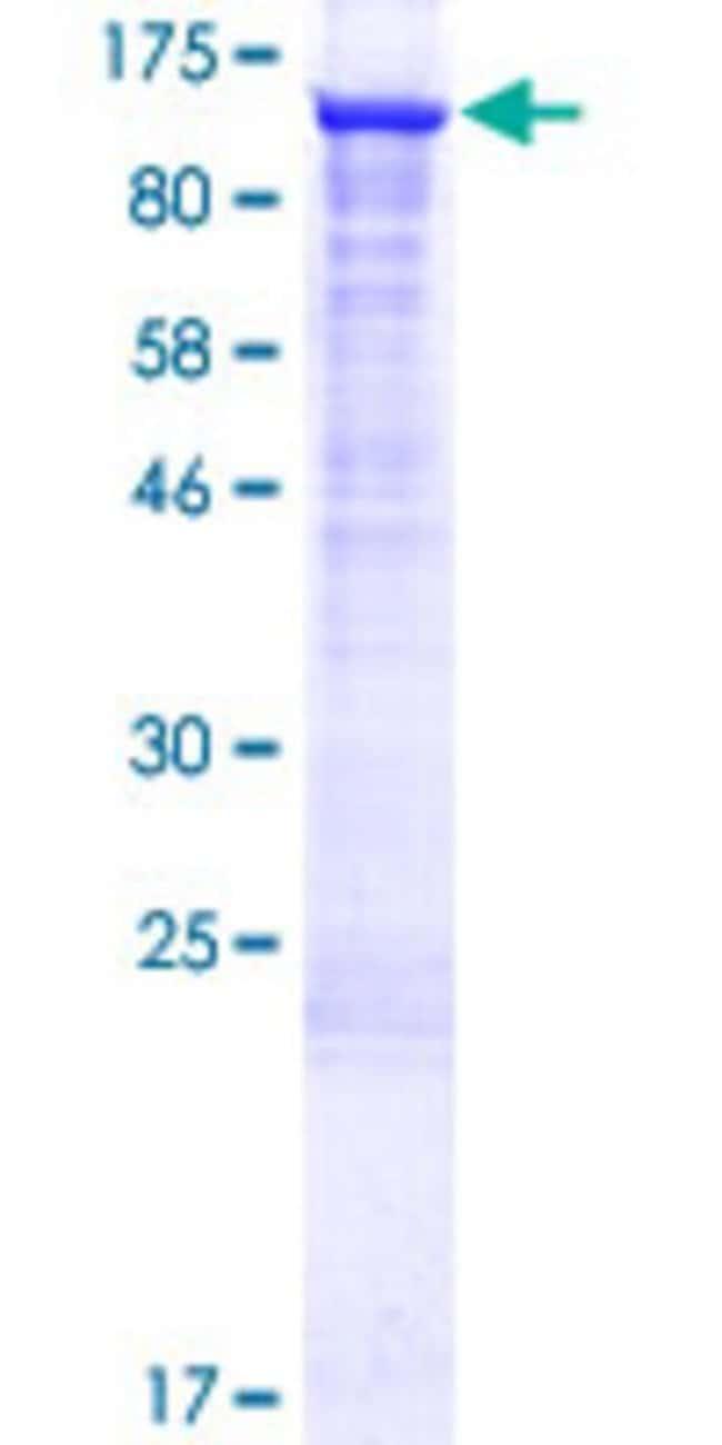 AbnovaHuman UBE2O Full-length ORF (AAH51868.2, 1 a.a. - 741 a.a.) Recombinant