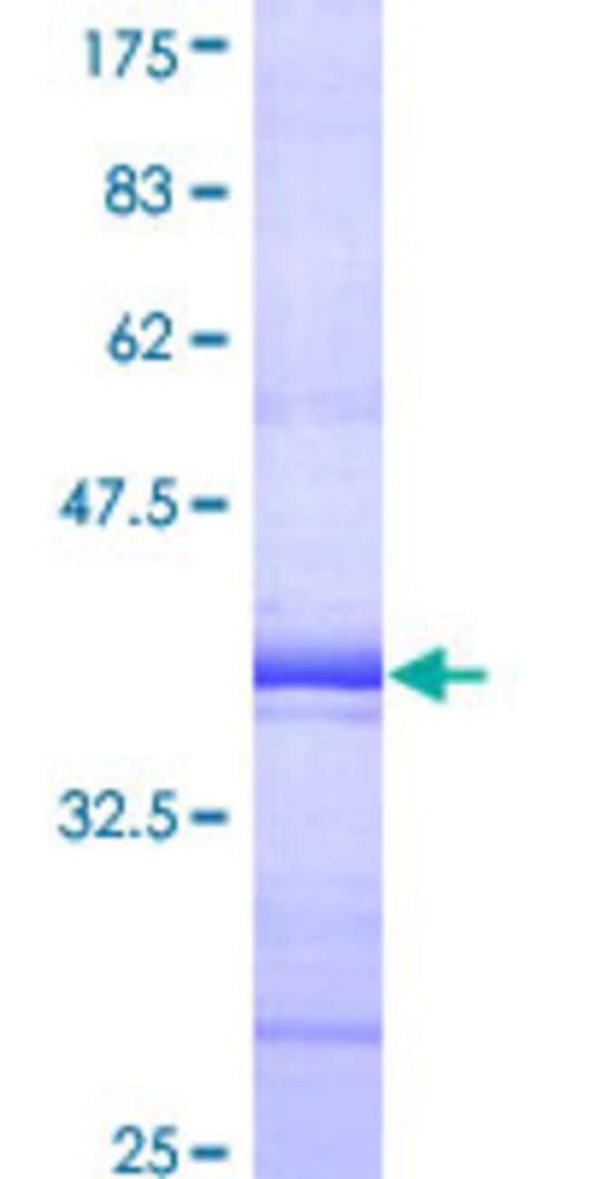 AbnovaHuman SH2D4A Partial ORF (AAH14525, 239 a.a. - 338 a.a.) Recombinant