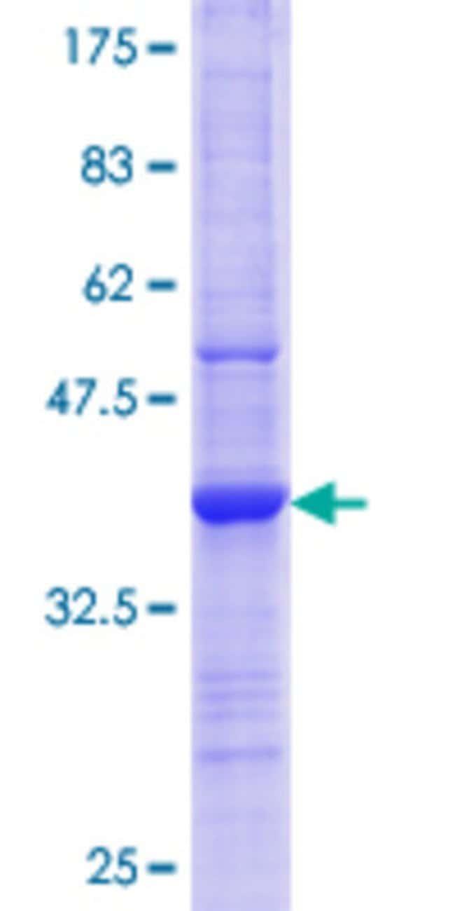 AbnovaHuman ELMO2 Partial ORF (NP_573403.1, 89 a.a. - 188 a.a.) Recombinant