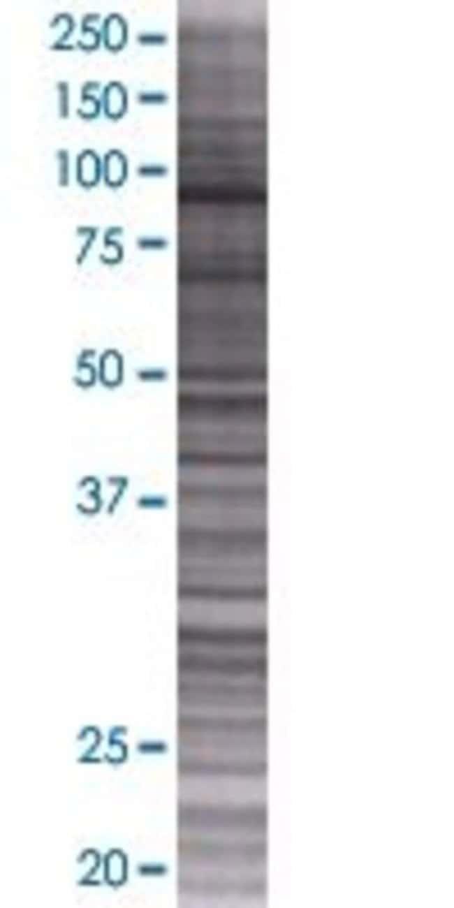 AbnovaANKRD5 293T Cell Transient Overexpression Lysate (Denatured) 100μL:Protein