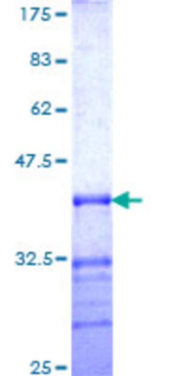 AbnovaHuman DMRTA1 Partial ORF (NP_071443, 301 a.a. - 390 a.a.) Recombinant