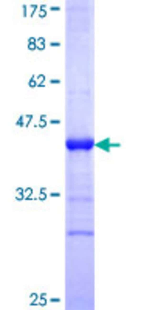 AbnovaHuman P53AIP1 Partial ORF (NP_071395, 1 a.a. - 108 a.a.) Recombinant