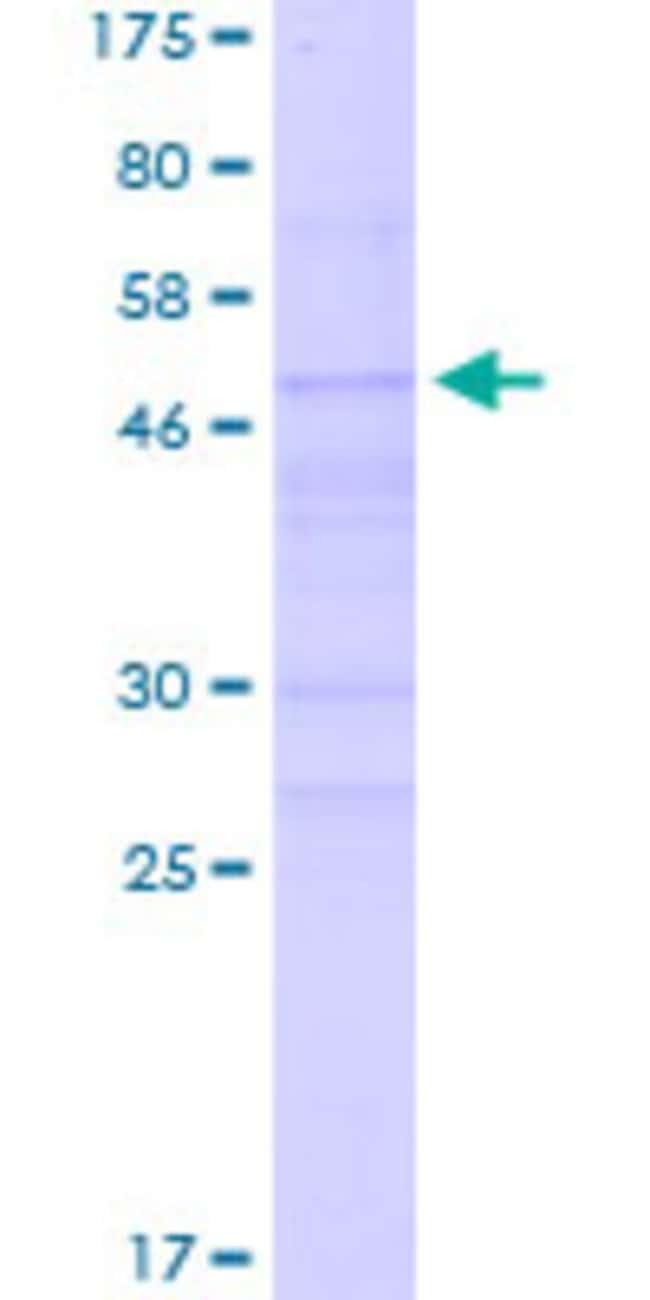 AbnovaHuman NEUROG2 Full-length ORF (NP_076924.1, 1 a.a. - 272 a.a.) Recombinant
