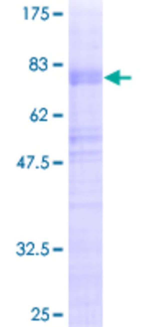 Abnova™Human NEUROD6 Full-length ORF (AAH35048, 1 a.a. - 337 a.a.) Recombinant Protein with GST-tag at N-terminal 10μg Abnova™Human NEUROD6 Full-length ORF (AAH35048, 1 a.a. - 337 a.a.) Recombinant Protein with GST-tag at N-terminal