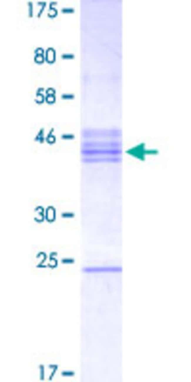 AbnovaHuman NEUROD6 Partial ORF (NP_073565.2, 191 a.a. - 290 a.a.) Recombinant