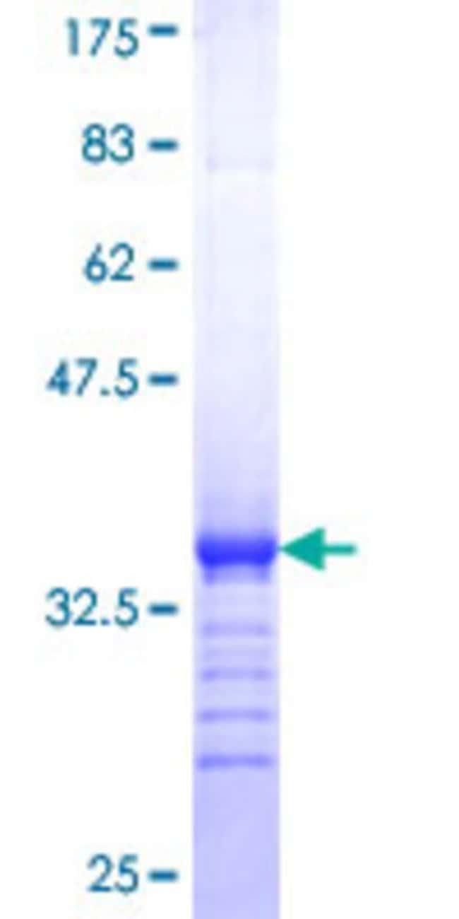 AbnovaHuman SMOC1 Partial ORF (NP_071420, 150 a.a. - 221 a.a.) Recombinant