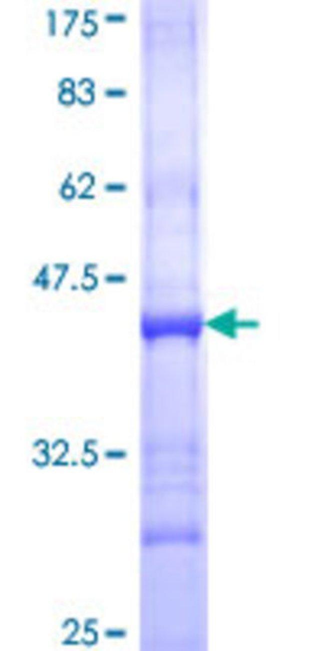 AbnovaHuman CRLF2 Partial ORF (NP_071431, 23 a.a. - 132 a.a.) Recombinant
