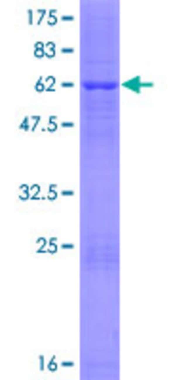 AbnovaHuman FN3K Full-length ORF (NP_071441.1, 1 a.a. - 309 a.a.) Recombinant