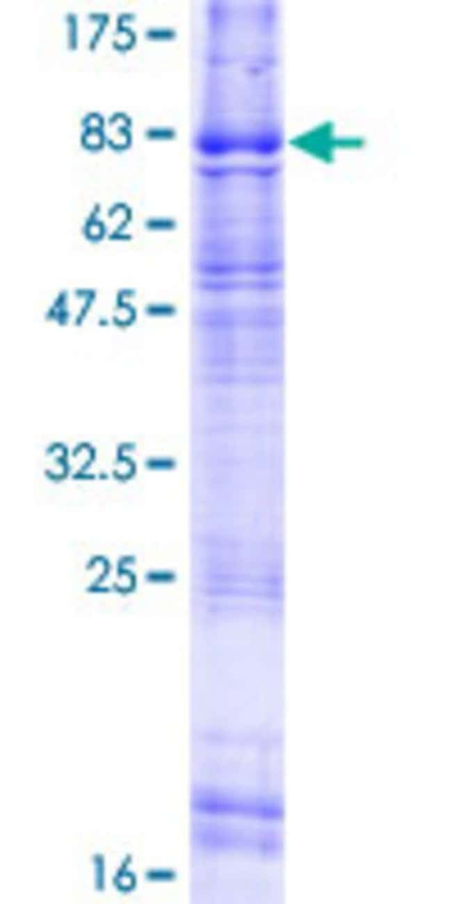 Abnova™Human ELTD1 Full-length ORF (AAH25721.1, 1 a.a. - 606 a.a.) Recombinant Protein with GST-tag at N-terminal 10μg Abnova™Human ELTD1 Full-length ORF (AAH25721.1, 1 a.a. - 606 a.a.) Recombinant Protein with GST-tag at N-terminal