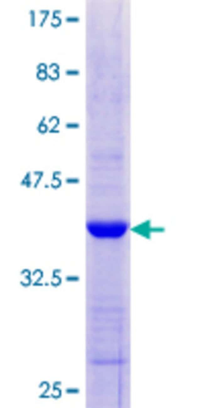 AbnovaHuman IFIH1 Partial ORF (NP_071451.2, 928 a.a. - 1023 a.a.) Recombinant