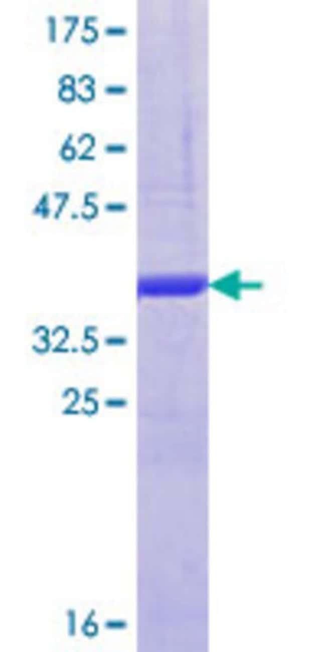 AbnovaHuman KIF9 Partial ORF (NP_878905.1, 691 a.a. - 789 a.a.) Recombinant