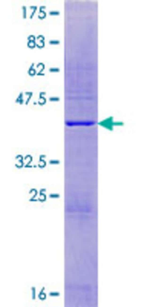 Abnova Human IFRG15 Full-length ORF (NP_071742.1, 1 a.a. - 131 a.a.) Recombinant