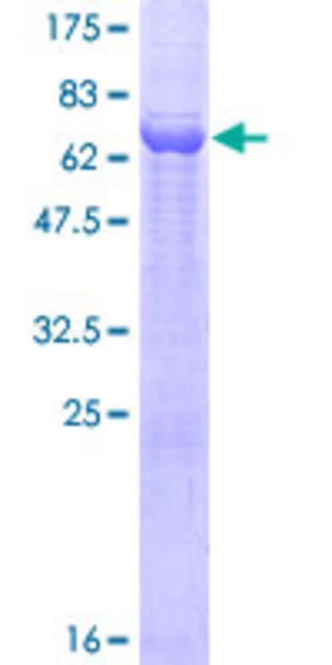 Abnova™Human DPEP2 Full-length ORF (AAH24021.1, 1 a.a. - 399 a.a.) Recombinant Protein with GST-tag at N-terminal 25μg Abnova™Human DPEP2 Full-length ORF (AAH24021.1, 1 a.a. - 399 a.a.) Recombinant Protein with GST-tag at N-terminal