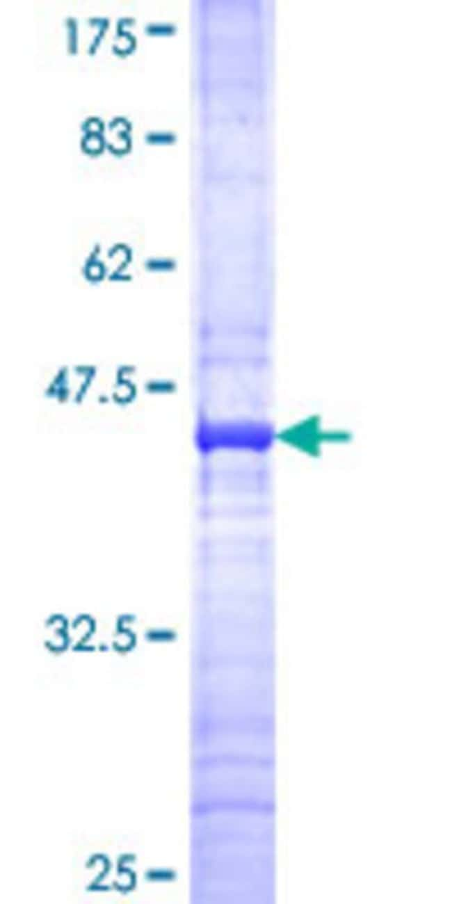 Abnova™ Human LHX5 Partial ORF (NP_071758, 136 a.a. - 235 a.a.) Recombinant Protein with GST-tag at N-terminal 10μg Abnova™ Human LHX5 Partial ORF (NP_071758, 136 a.a. - 235 a.a.) Recombinant Protein with GST-tag at N-terminal