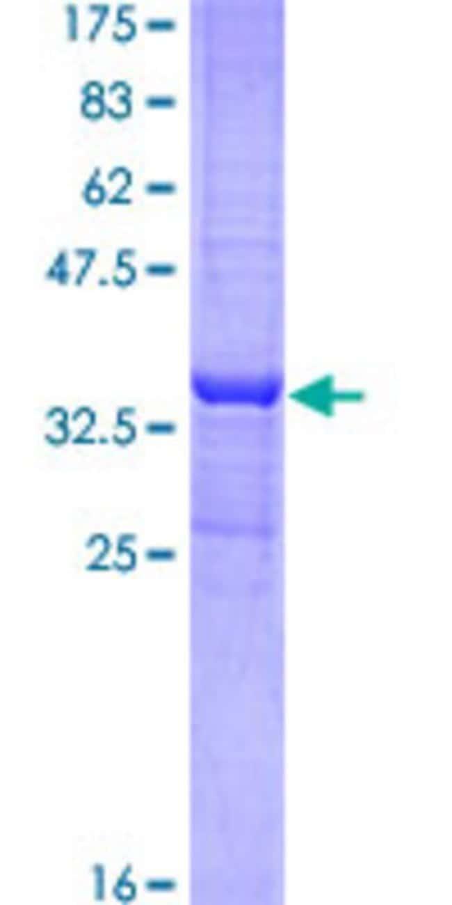 AbnovaHuman TFB2M Partial ORF (NP_071761, 297 a.a. - 396 a.a.) Recombinant