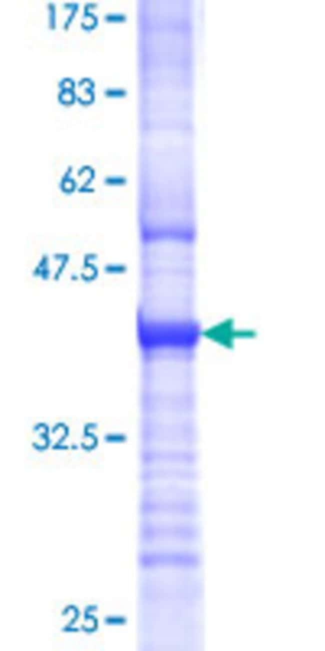 Abnova™Human TOR3A Partial ORF (NP_071766, 298 a.a. - 397 a.a.) Recombinant Protein with GST-tag at N-terminal 25μg Abnova™Human TOR3A Partial ORF (NP_071766, 298 a.a. - 397 a.a.) Recombinant Protein with GST-tag at N-terminal