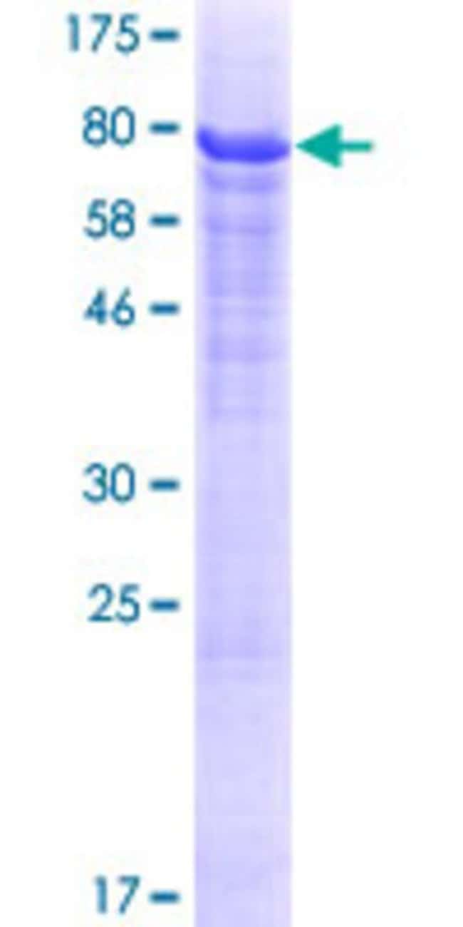Abnova™Human HERPUD2 Full-length ORF (NP_071768.2, 1 a.a. - 406 a.a.) Recombinant Protein with GST-tag at N-terminal 25μg Abnova™Human HERPUD2 Full-length ORF (NP_071768.2, 1 a.a. - 406 a.a.) Recombinant Protein with GST-tag at N-terminal
