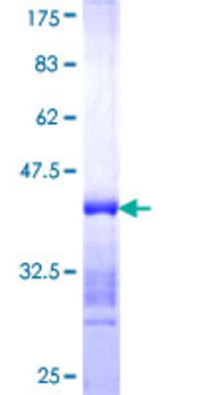 AbnovaHuman C10orf117 Partial ORF (NP_071896, 702 a.a. - 800 a.a.) Recombinant