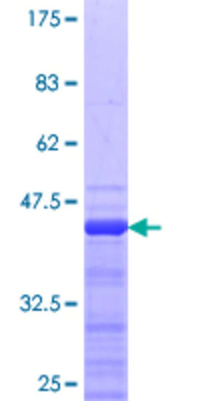 Abnova™Human RNF25 Partial ORF (NP_071898.2, 352 a.a. - 459 a.a.) Recombinant Protein with GST-tag at N-terminal 10μg Abnova™Human RNF25 Partial ORF (NP_071898.2, 352 a.a. - 459 a.a.) Recombinant Protein with GST-tag at N-terminal