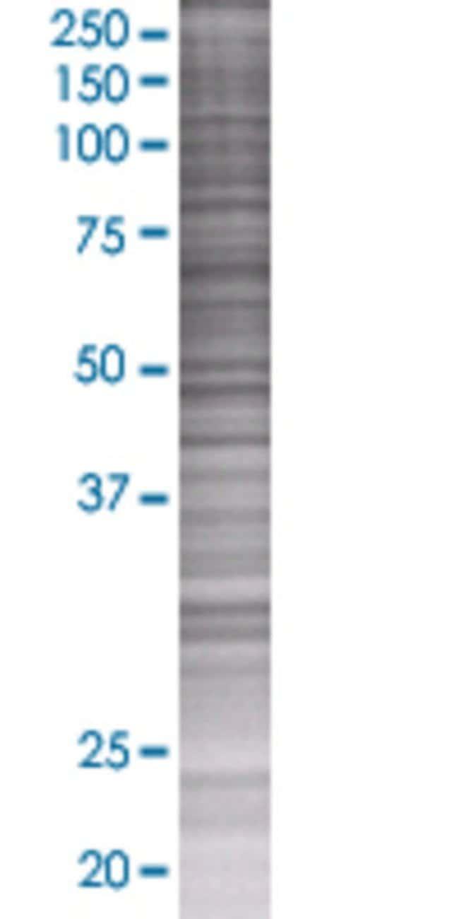 AbnovaARHGAP9 293T Cell Transient Overexpression Lysate (Denatured) 100μL:Protein