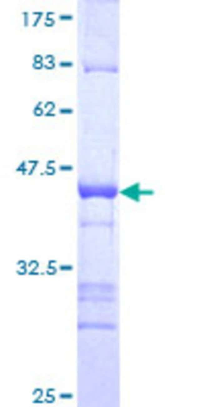 Abnova™Human IKZF4 Partial ORF (NP_071910, 2 a.a. - 108 a.a.) Recombinant Protein with GST-tag at N-terminal 10μg Abnova™Human IKZF4 Partial ORF (NP_071910, 2 a.a. - 108 a.a.) Recombinant Protein with GST-tag at N-terminal