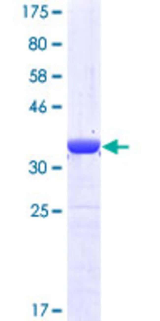 AbnovaHuman MPP5 Partial ORF (NP_071919, 79 a.a. - 177 a.a.) Recombinant