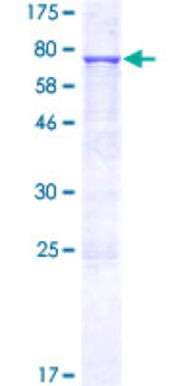 AbnovaHuman NARFL Full-length ORF (NP_071938.1, 1 a.a. - 476 a.a.) Recombinant