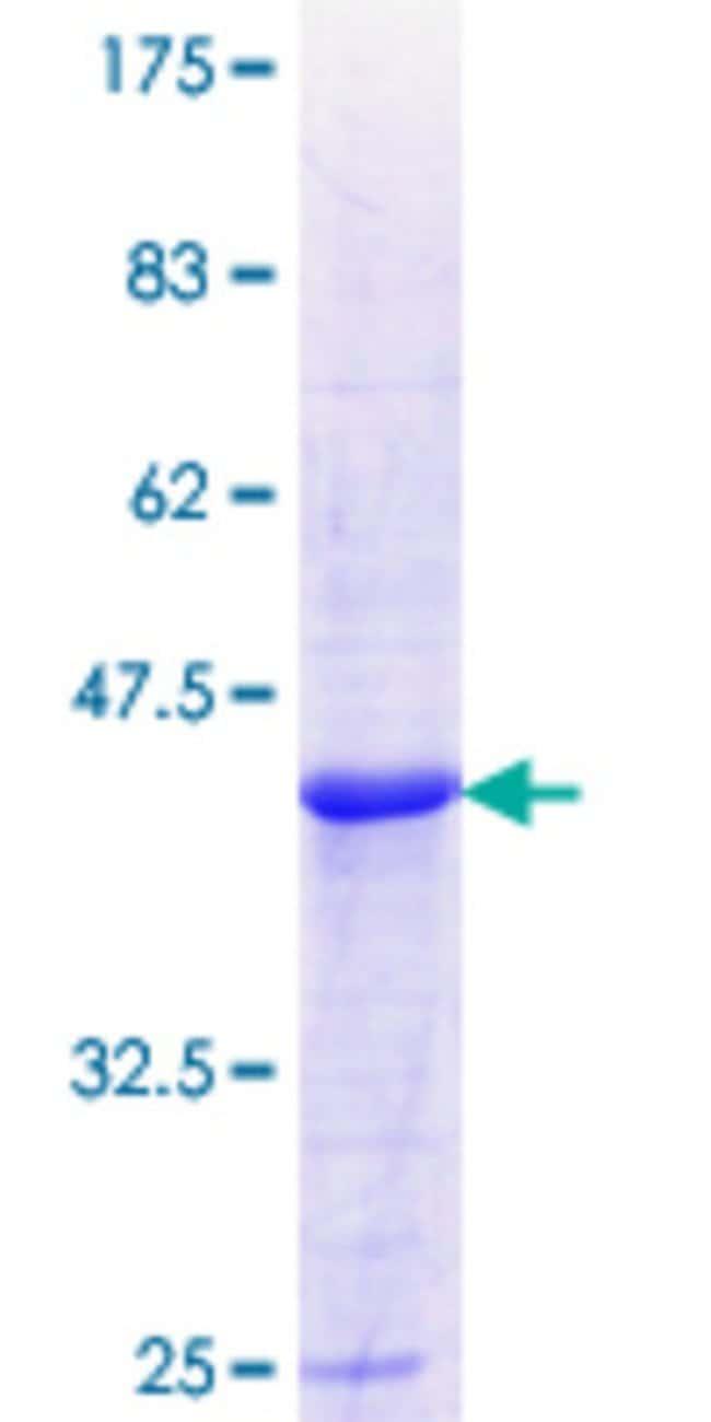 AbnovaHuman ALDH8A1 Partial ORF (NP_072090.1, 388 a.a. - 487 a.a.) Recombinant