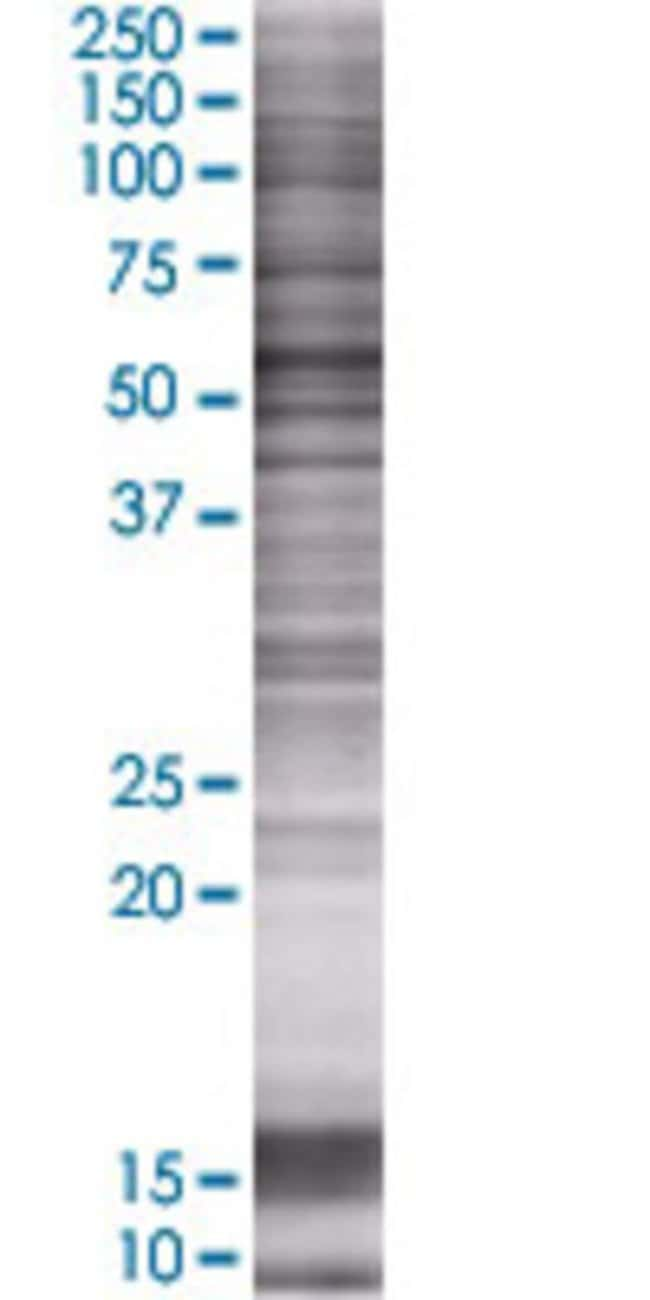 AbnovaALDH8A1 293T Cell Transient Overexpression Lysate (Denatured) 100μL:Protein