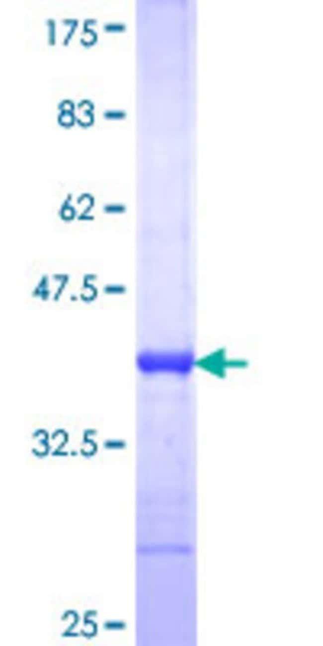 AbnovaHuman MOSPD3 Partial ORF (NP_076438, 43 a.a. - 141 a.a.) Recombinant