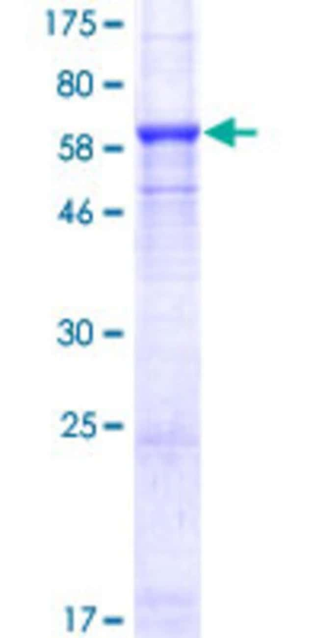 AbnovaHuman SMYD3 Full-length ORF (NP_073580.1, 1 a.a. - 369 a.a.) Recombinant