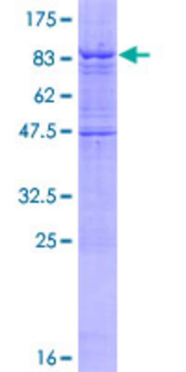 Abnova™Human IPPK Full-length ORF (NP_073592.1, 1 a.a. - 491 a.a.) Recombinant Protein with GST-tag at N-terminal 25μg Abnova™Human IPPK Full-length ORF (NP_073592.1, 1 a.a. - 491 a.a.) Recombinant Protein with GST-tag at N-terminal