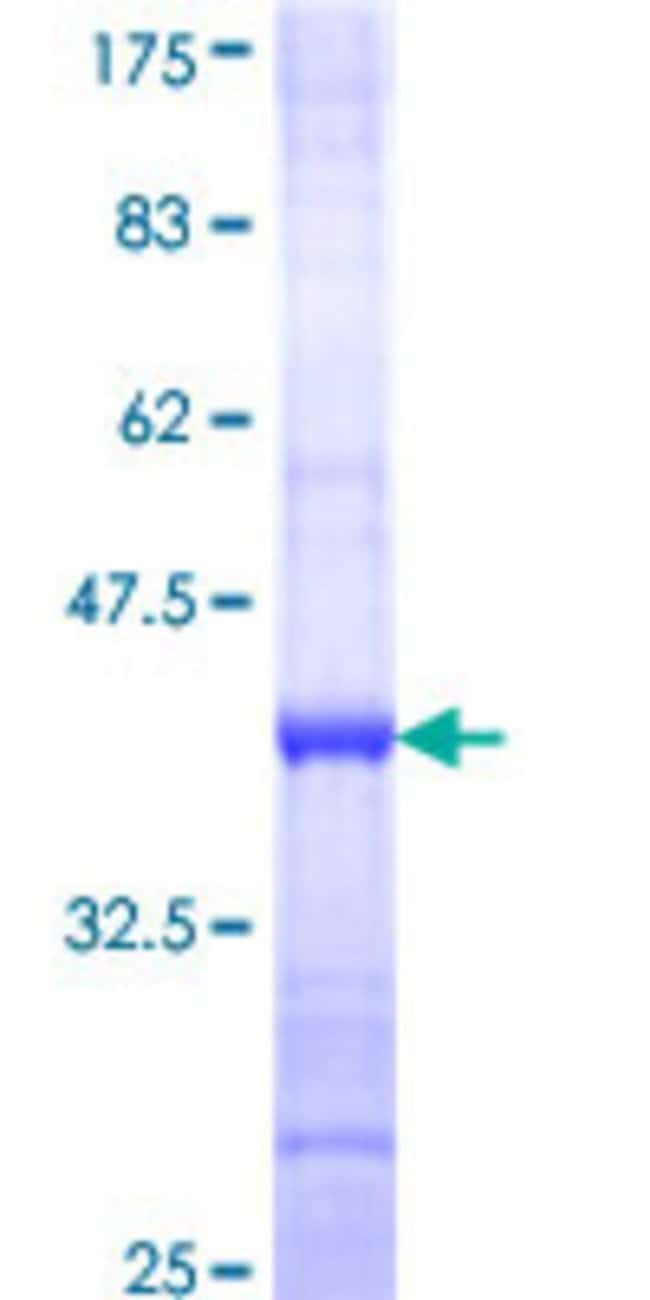 Abnova™Human C9orf12 Partial ORF (NP_073592, 391 a.a. - 491 a.a.) Recombinant Protein with GST-tag at N-terminal 25μg Abnova™Human C9orf12 Partial ORF (NP_073592, 391 a.a. - 491 a.a.) Recombinant Protein with GST-tag at N-terminal