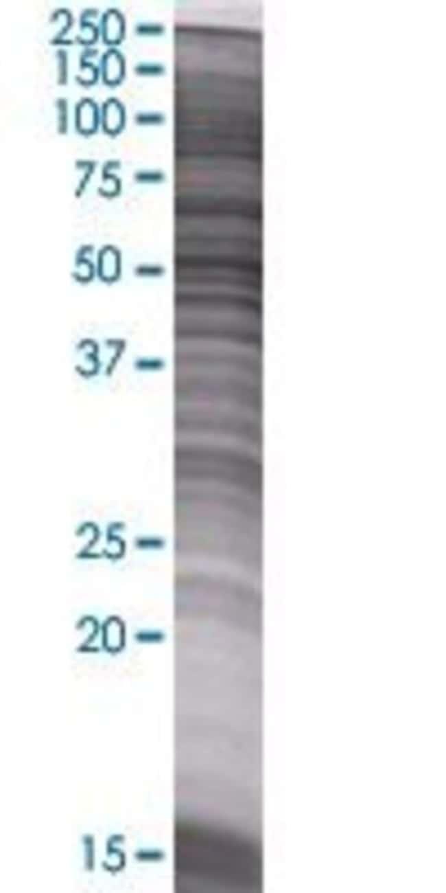 Abnova IPPK 293T Cell Transient Overexpression Lysate (Denatured) 100µL:Life