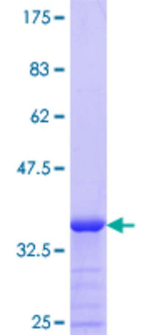 AbnovaHuman MICAL1 Partial ORF (NP_073602.2, 971 a.a. - 1067 a.a.) Recombinant