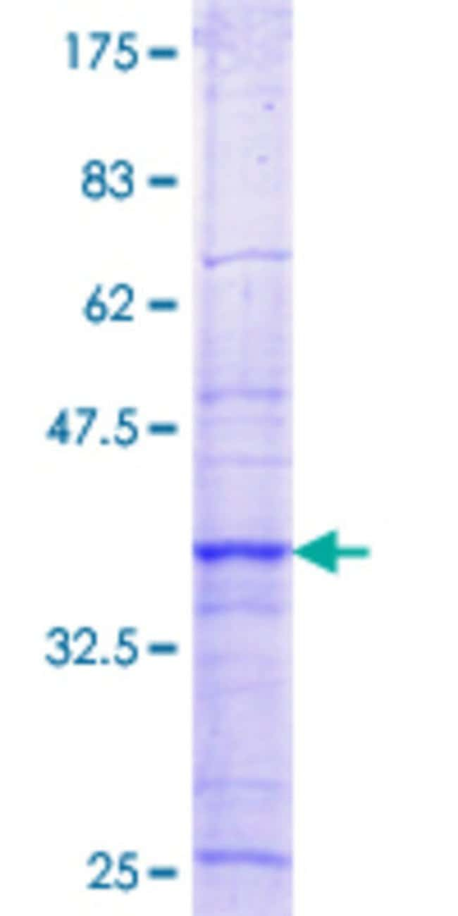 Abnova™Human RBM15 Partial ORF (NP_073605.4, 701 a.a. - 810 a.a.) Recombinant Protein with GST-tag at N-terminal 10μg Abnova™Human RBM15 Partial ORF (NP_073605.4, 701 a.a. - 810 a.a.) Recombinant Protein with GST-tag at N-terminal