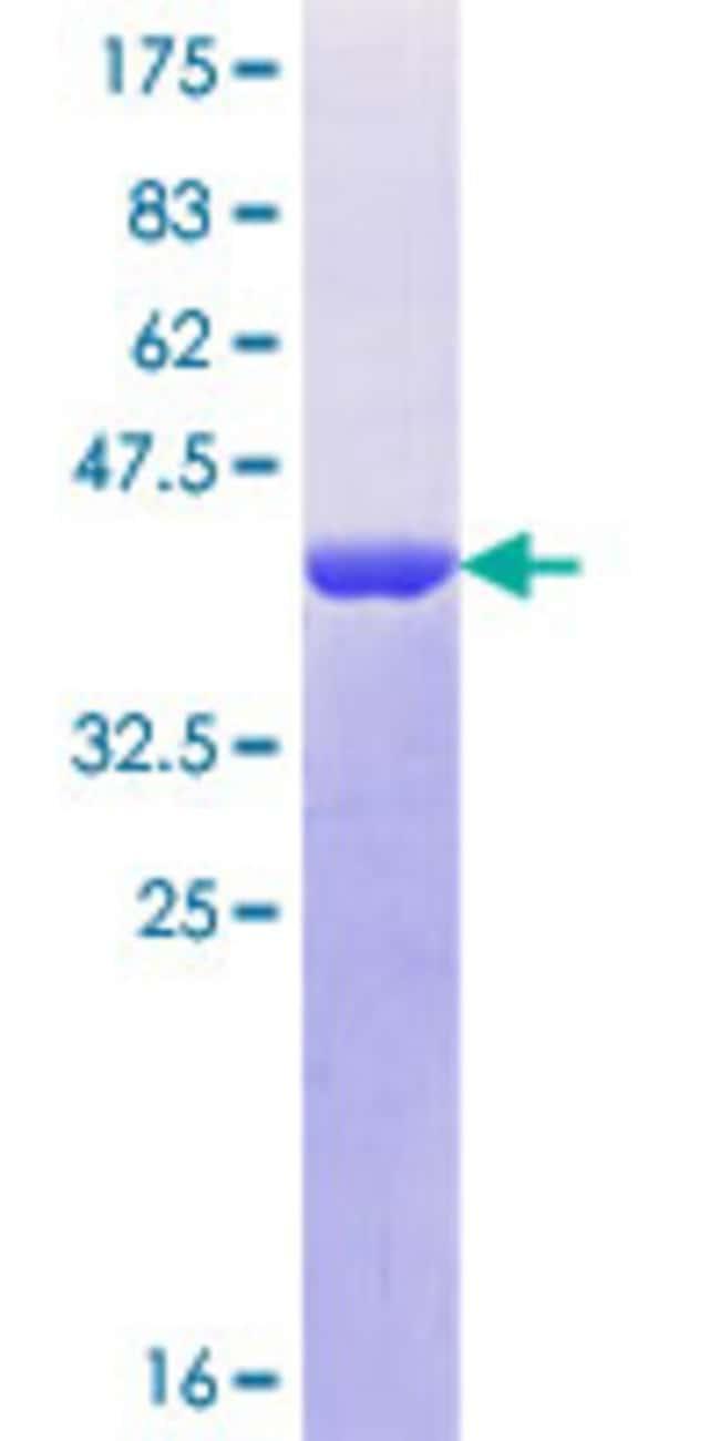 AbnovaHuman CRTC3 Partial ORF (NP_073606.2, 176 a.a. - 274 a.a.) Recombinant