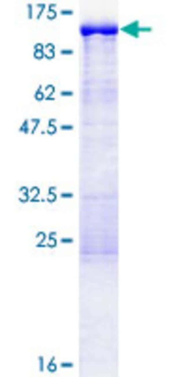 AbnovaHuman EPS8L2 Full-length ORF (NP_073609.2, 1 a.a. - 715 a.a.) Recombinant