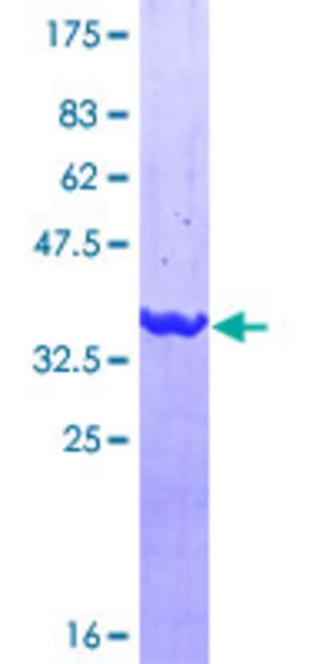 AbnovaHuman EPS8L2 Partial ORF (NP_073609, 615 a.a. - 714 a.a.) Recombinant