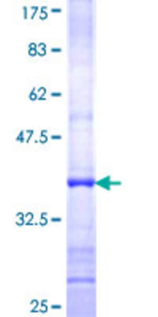 AbnovaHuman FLJ12476 Partial ORF (NP_073621, 301 a.a. - 400 a.a.) Recombinant