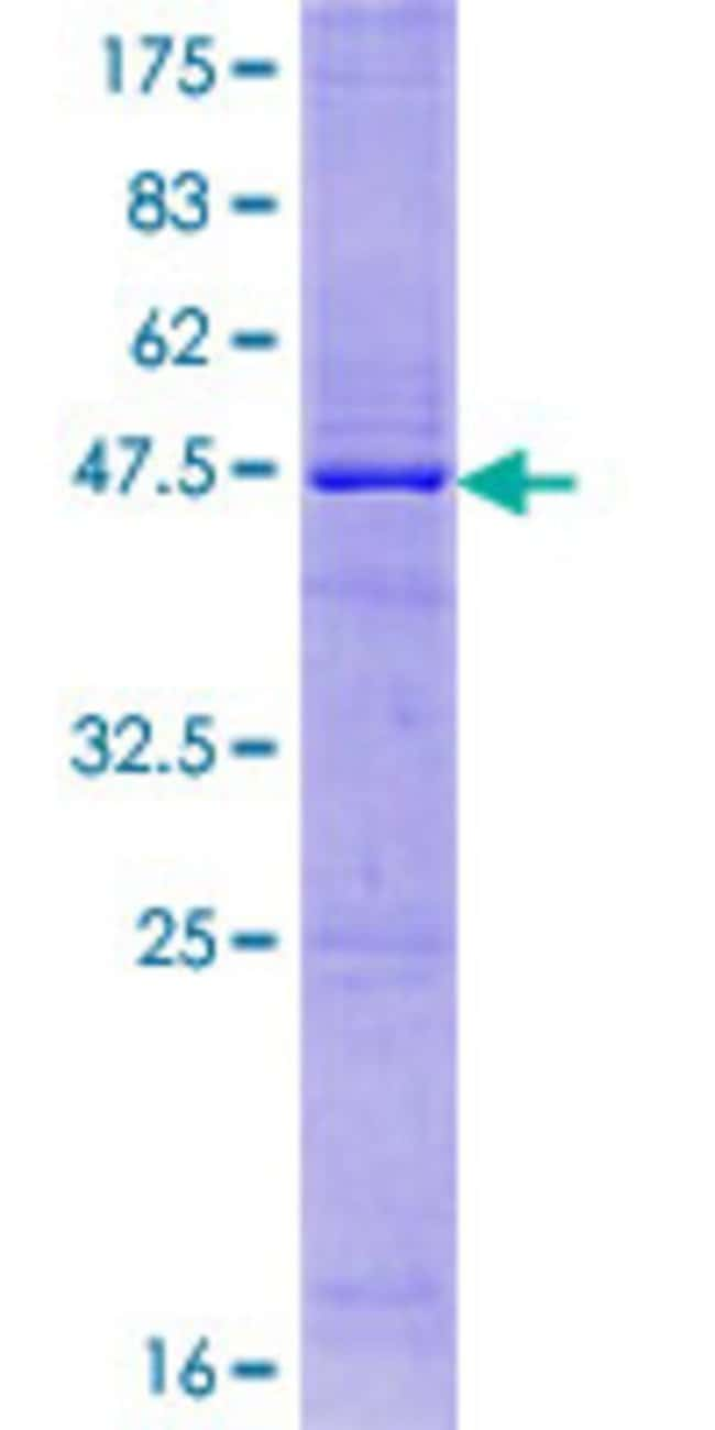 AbnovaHuman IL17E Full-length ORF (NP_073626.1, 1 a.a. - 177 a.a.) Recombinant
