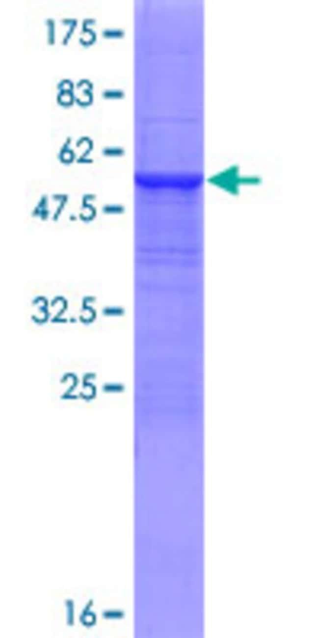 AbnovaHuman CYP3A43 Full-length ORF (AAI00983.1, 1 a.a. - 280 a.a.) Recombinant