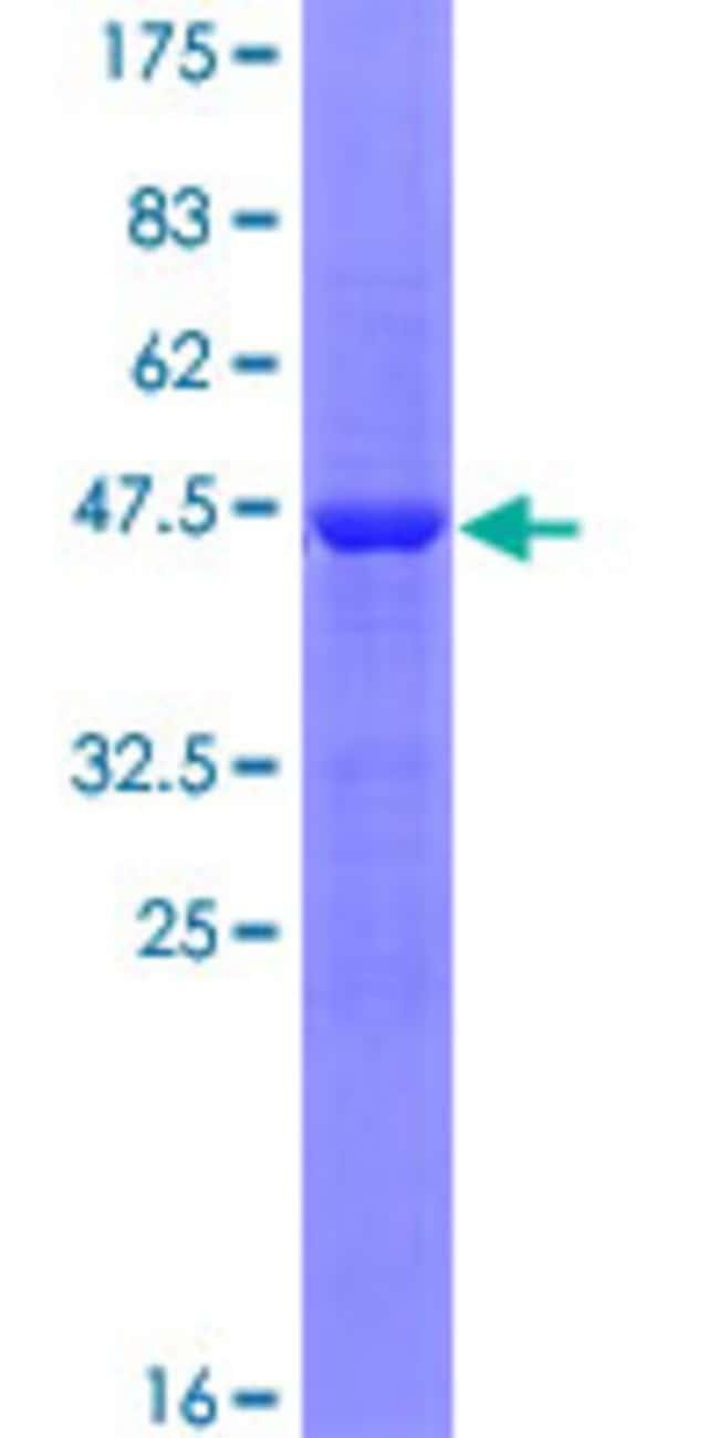 AbnovaHuman GNPNAT1 Full-length ORF (NP_932332.1, 1 a.a. - 184 a.a.) Recombinant
