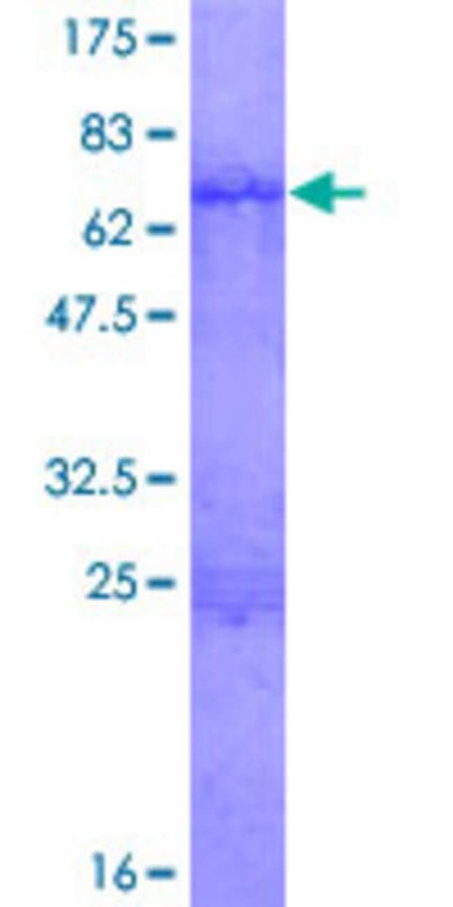 Abnova Human ISL2 Full-length ORF (NP_665804.1, 1 a.a. - 359 a.a.) Recombinant
