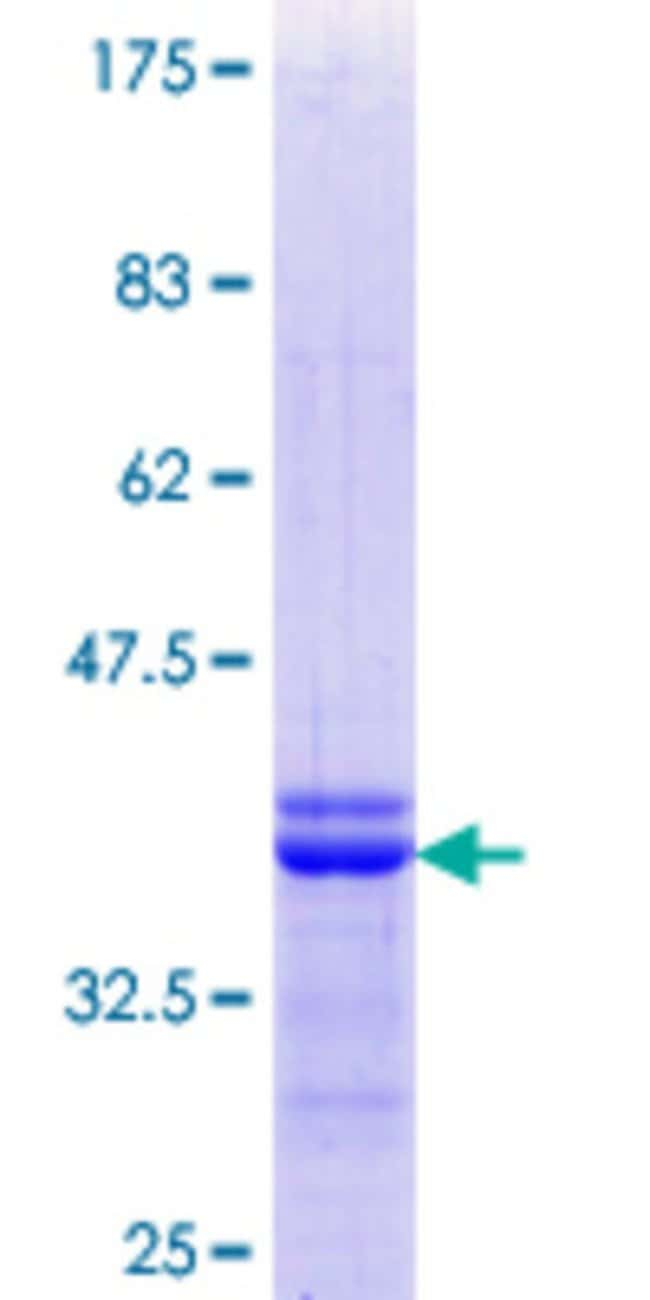 Abnova™ Human ISL2 Partial ORF (NP_665804.1, 261 a.a. - 358 a.a.) Recombinant Protein with GST-tag at N-terminal 25μg Abnova™ Human ISL2 Partial ORF (NP_665804.1, 261 a.a. - 358 a.a.) Recombinant Protein with GST-tag at N-terminal