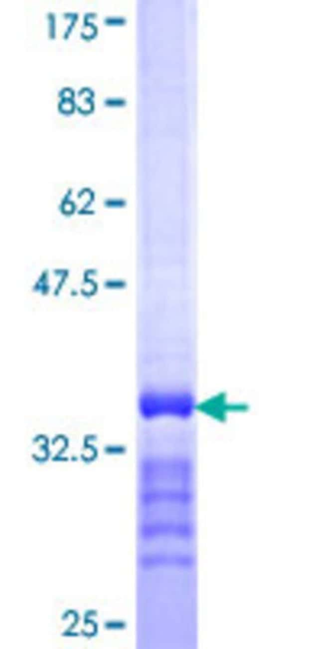 Abnova™Human SLC13A3 Partial ORF (NP_073740, 152 a.a. - 232 a.a.) Recombinant Protein with GST-tag at N-terminal 25μg Abnova™Human SLC13A3 Partial ORF (NP_073740, 152 a.a. - 232 a.a.) Recombinant Protein with GST-tag at N-terminal