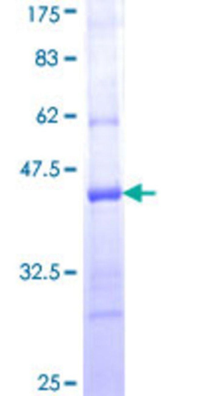AbnovaHuman PCDH20 Partial ORF (NP_073754, 395 a.a. - 494 a.a.) Recombinant