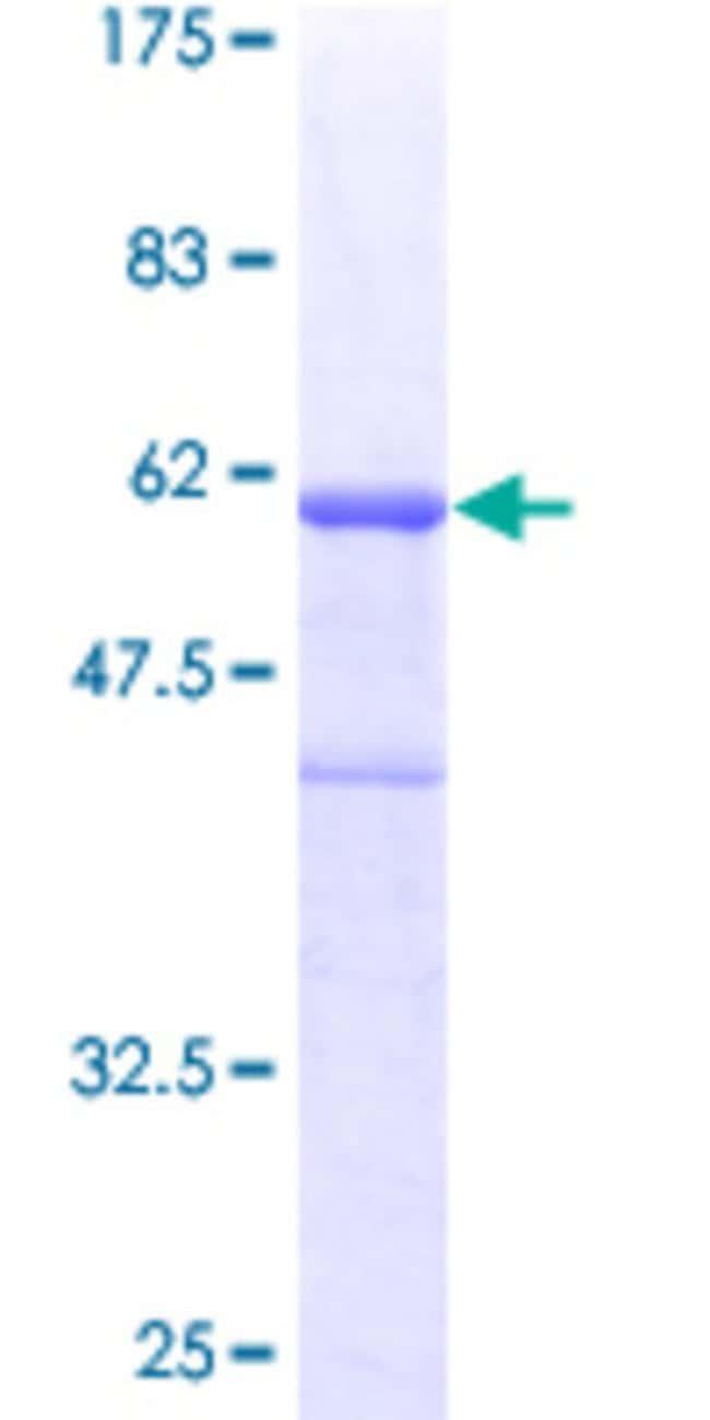 AbnovaHuman CENPH Full-length ORF (AAH12024, 1 a.a. - 247 a.a.) Recombinant