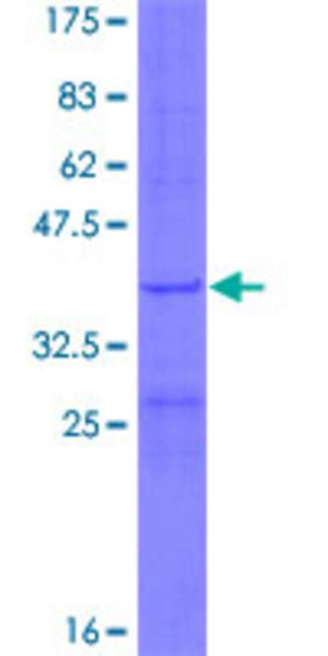 AbnovaHuman MRPL34 Full-length ORF (NP_076426.1, 1 a.a. - 92 a.a.) Recombinant