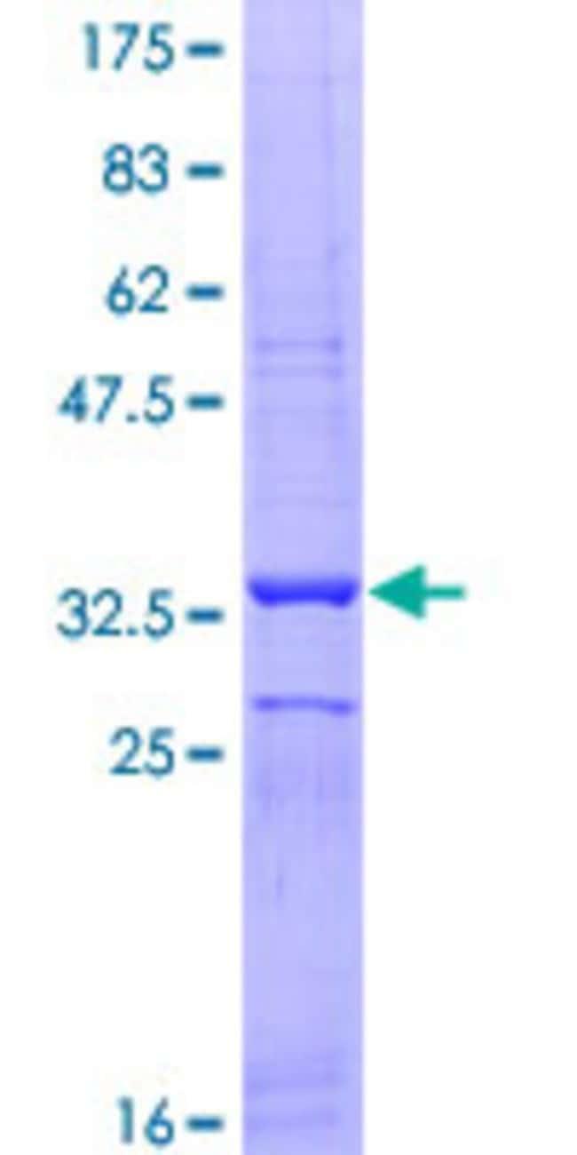 AbnovaHuman SLC26A6 Partial ORF (NP_075062, 666 a.a. - 738 a.a.) Recombinant